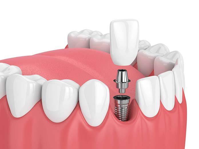 Czym są implanty hybrydowe?